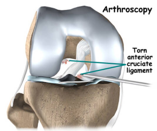 PCL (Posterior Cruciate Ligament) reconstruction /Surgery